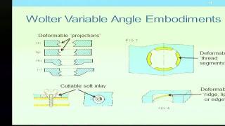 AngleFix Tech, LLC v. Smith & Nephew, Inc (Part 2)
